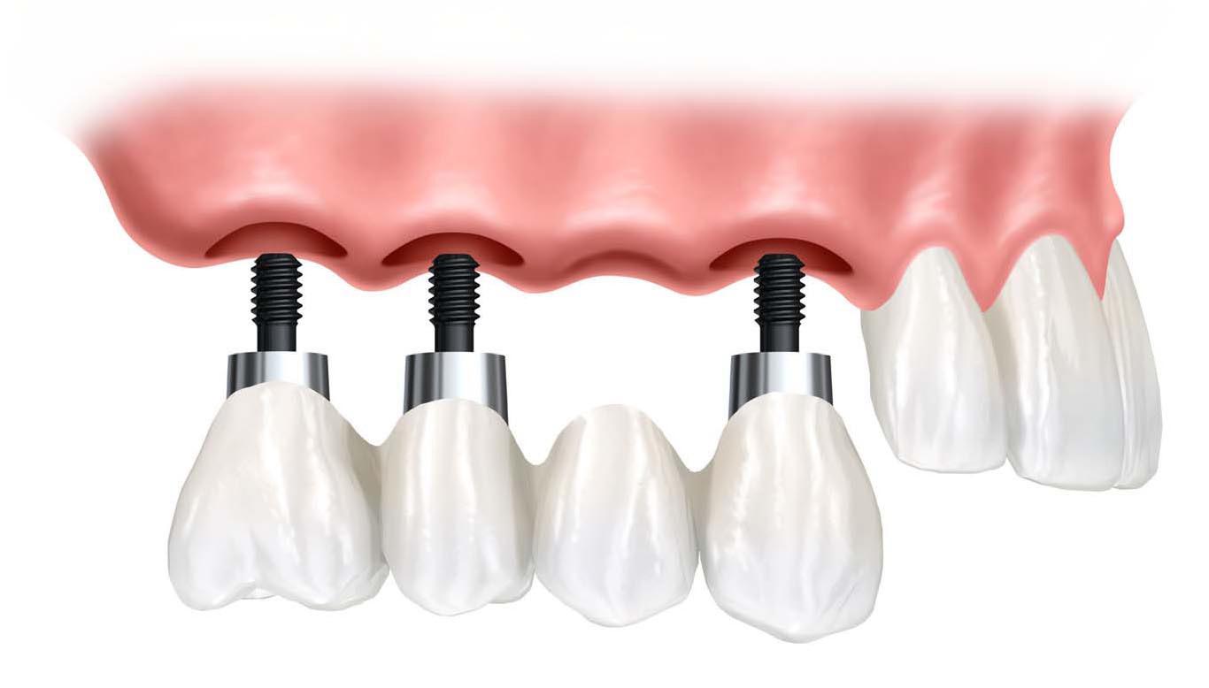 Studio Cannizzo e gli impianti dentali di qualità